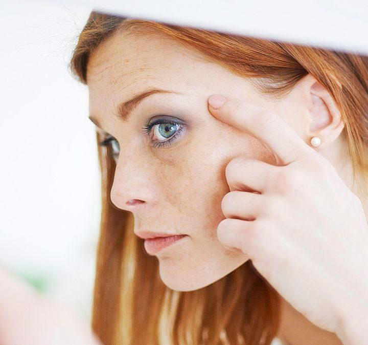 Cievne prejavy na tvári sú neestetické